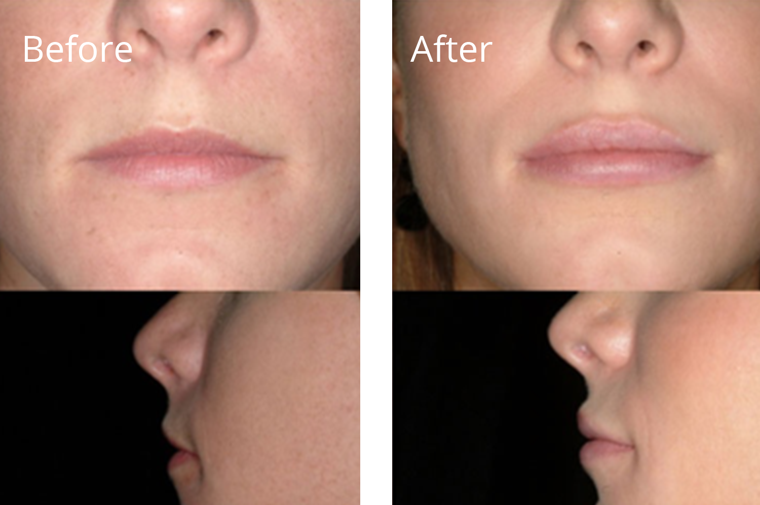 Lip Fillers & Augmentation