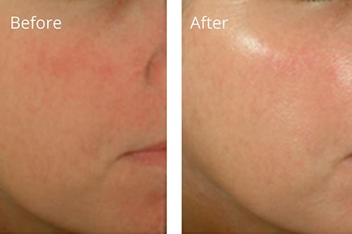 Medical Grade Chemical Skin Peel
