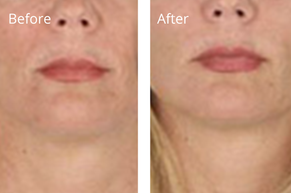 Vampire Facial Before and After